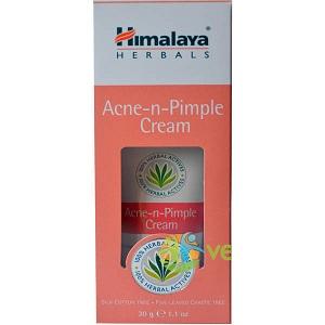 3-himalaya-acne-n-pimple